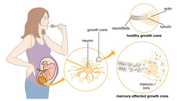 Facts about mercury dental silver filling toxicity for Does fish have mercury