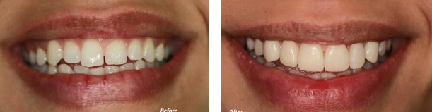 seef-dental-bahrain-dr-rabih-before-after